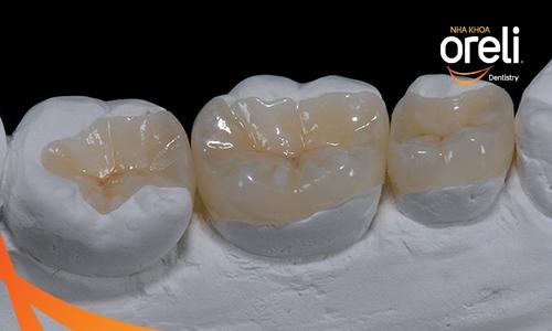 Trám răng kỹ thuật cao inlay onlay
