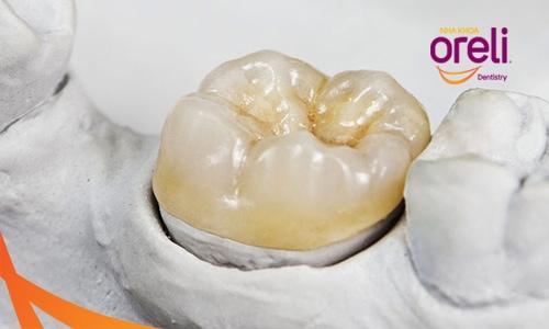 Trám răng overlay tại nha khoa oreli