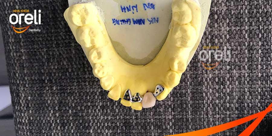 Phục hình cánh dán không mài răng