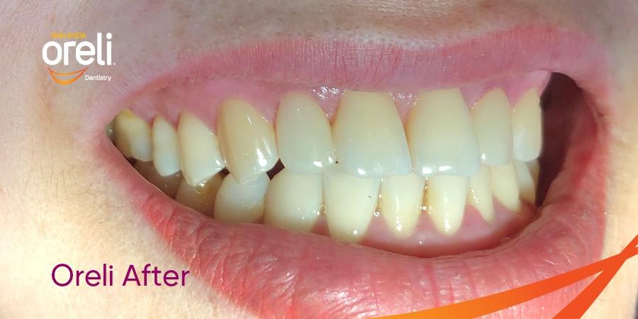 bọc răng sứ tại nha khoa Oreli