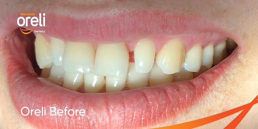 mặt dán sứ không mài răng
