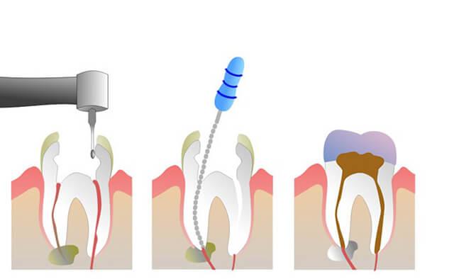 liệu pháp chữa tủy răng