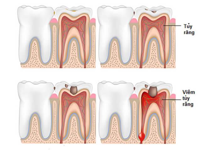 Phục hồi tủy răng