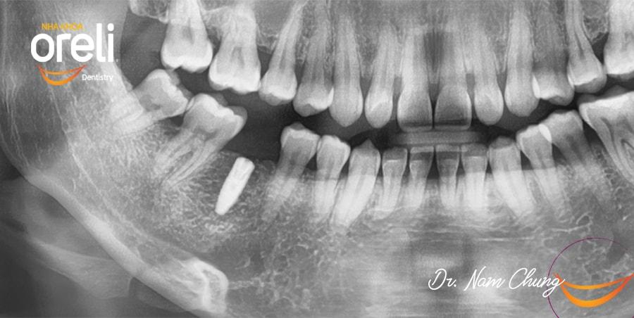 implant uy tin bmt nha khoa oreli