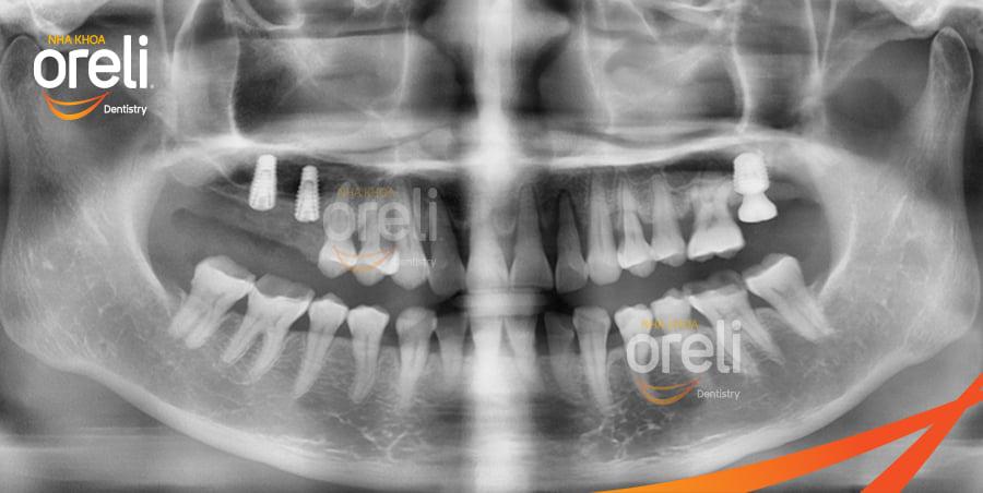 cấy implant uy tín bmt nha khoa oreli