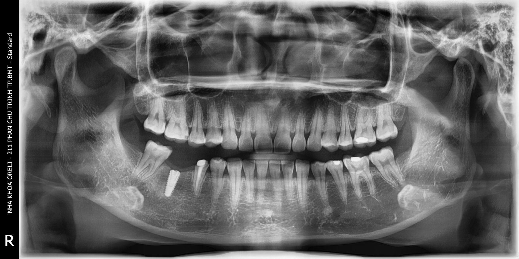 cấy implant uy tín bmt