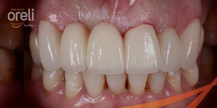 cau răng sứ