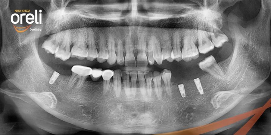 cay ghep nha khoa implant