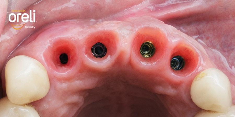 implant uy tin bmt